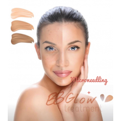 Formation Microneedling + BB Glow